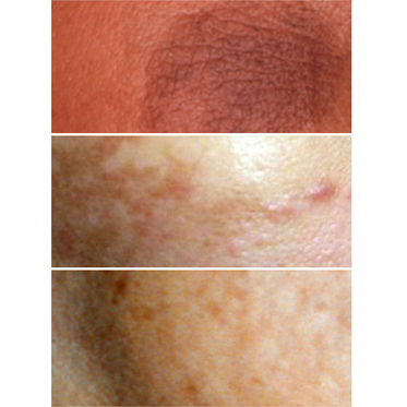 depigmentation-treatment